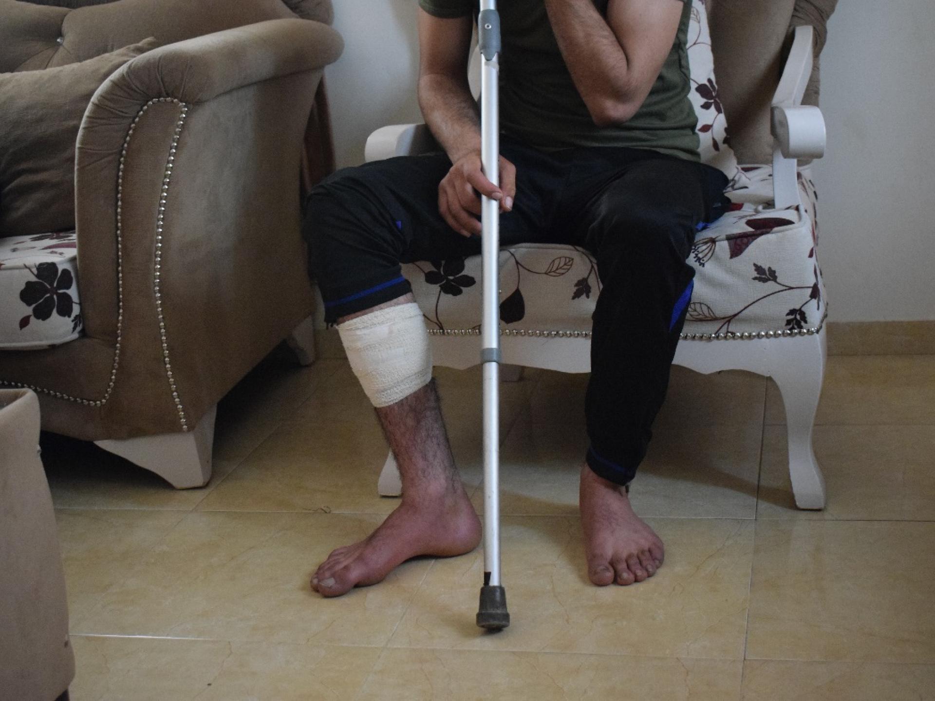 רגלו החבושה של הבחור שמתנחלים מיצהר הכוהו במוט ברזל לאחר שמנע מהם בגופו פגיעה בעצי הזית.