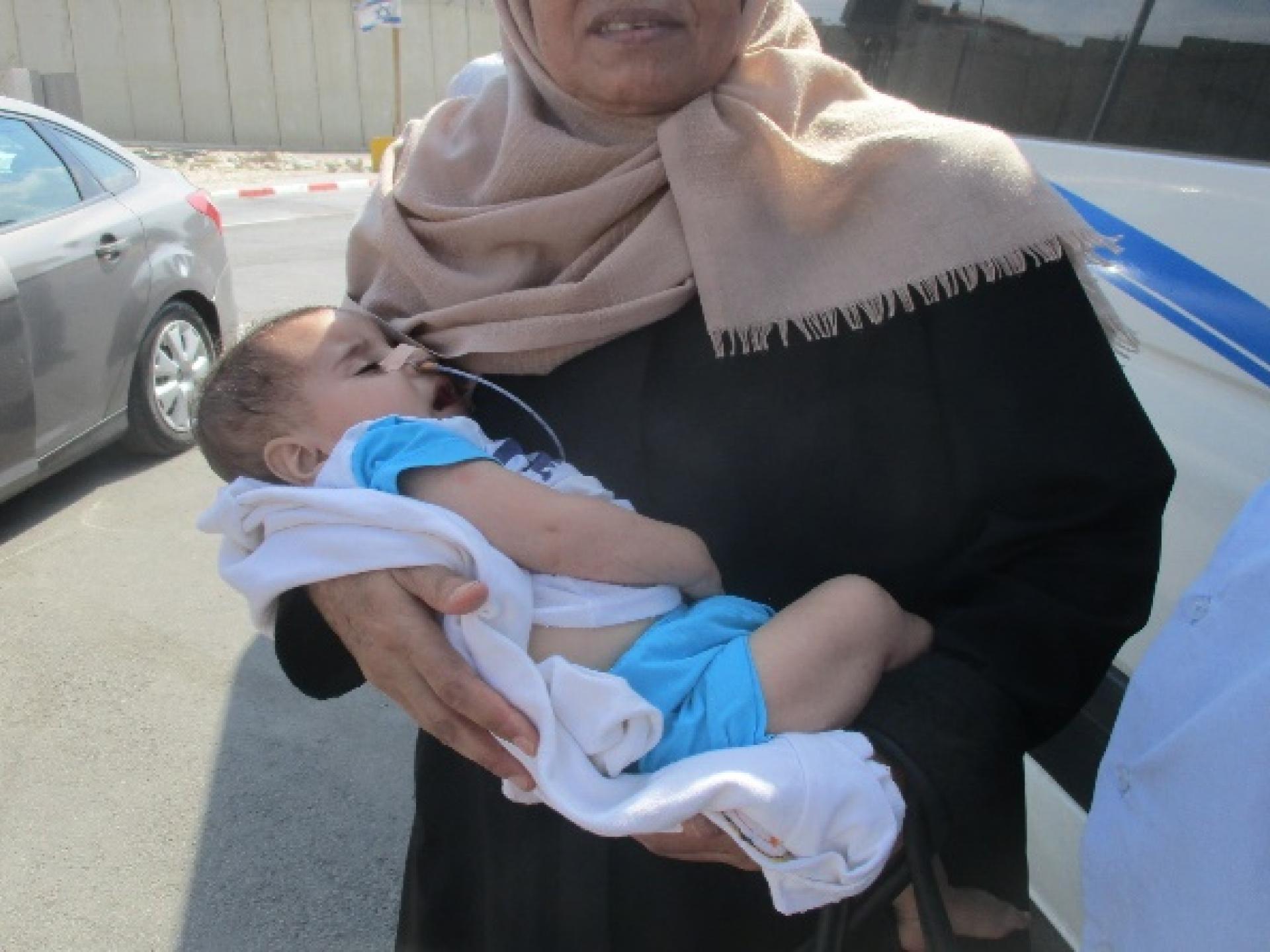 תינוק בן ששה שבועות שצינורית זונדה נמתחת מאפו