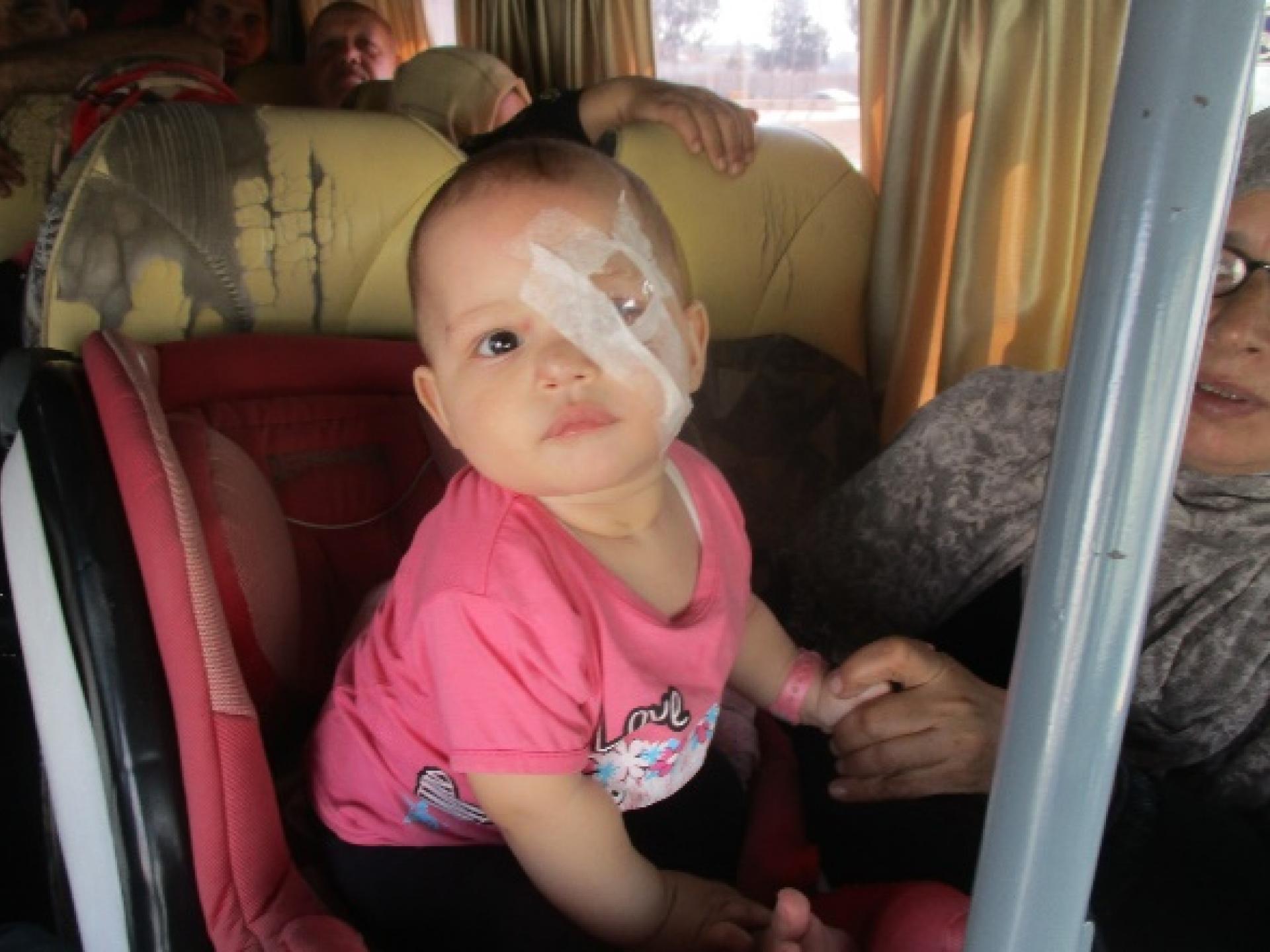 תינוקת בת תשעה חודשים שנותחה בעינה שמוגנת בכוס פלסטיק