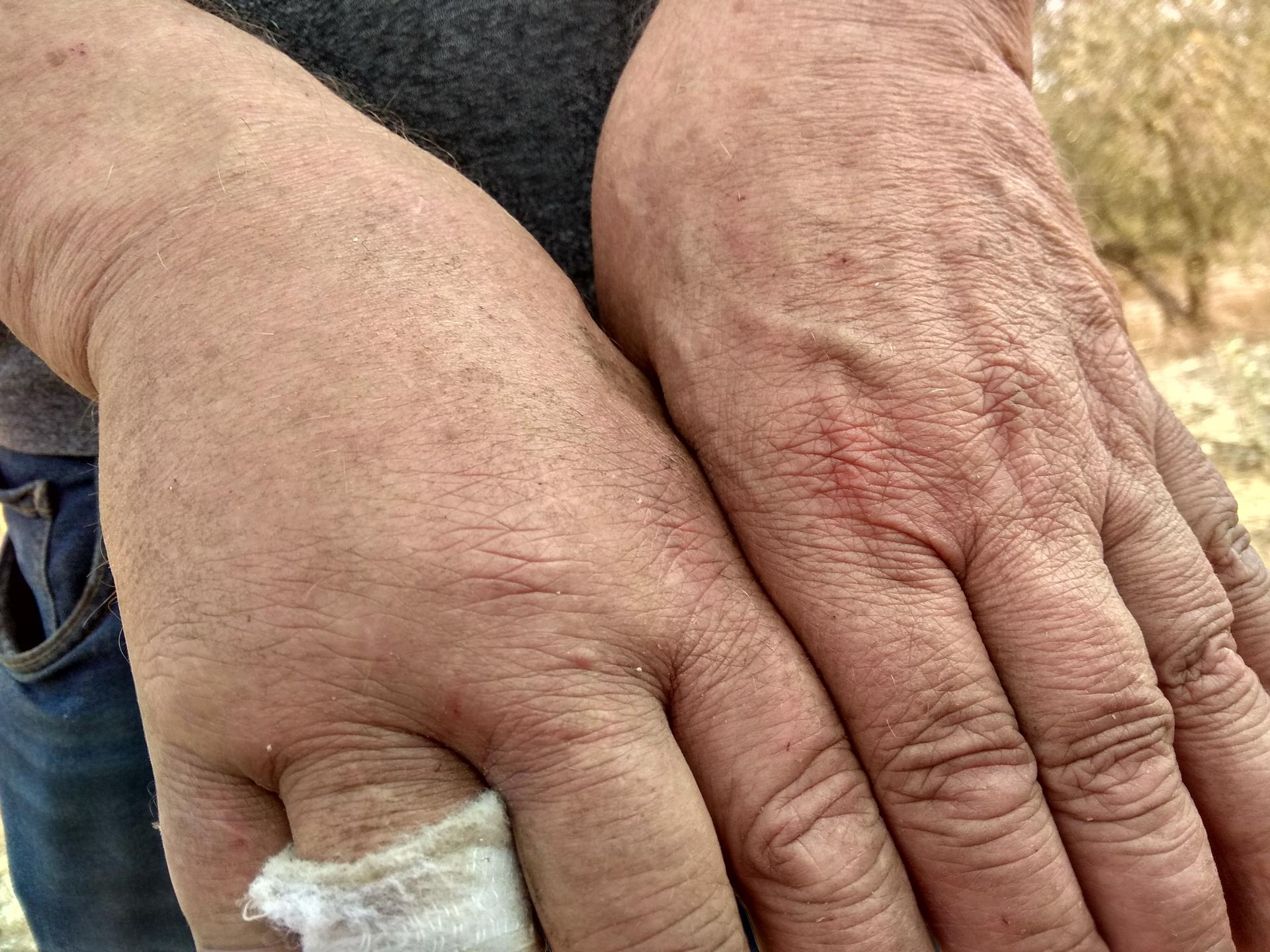 """ידו הפצועה של ג. שהוכה ע""""י בריוני יצהר"""