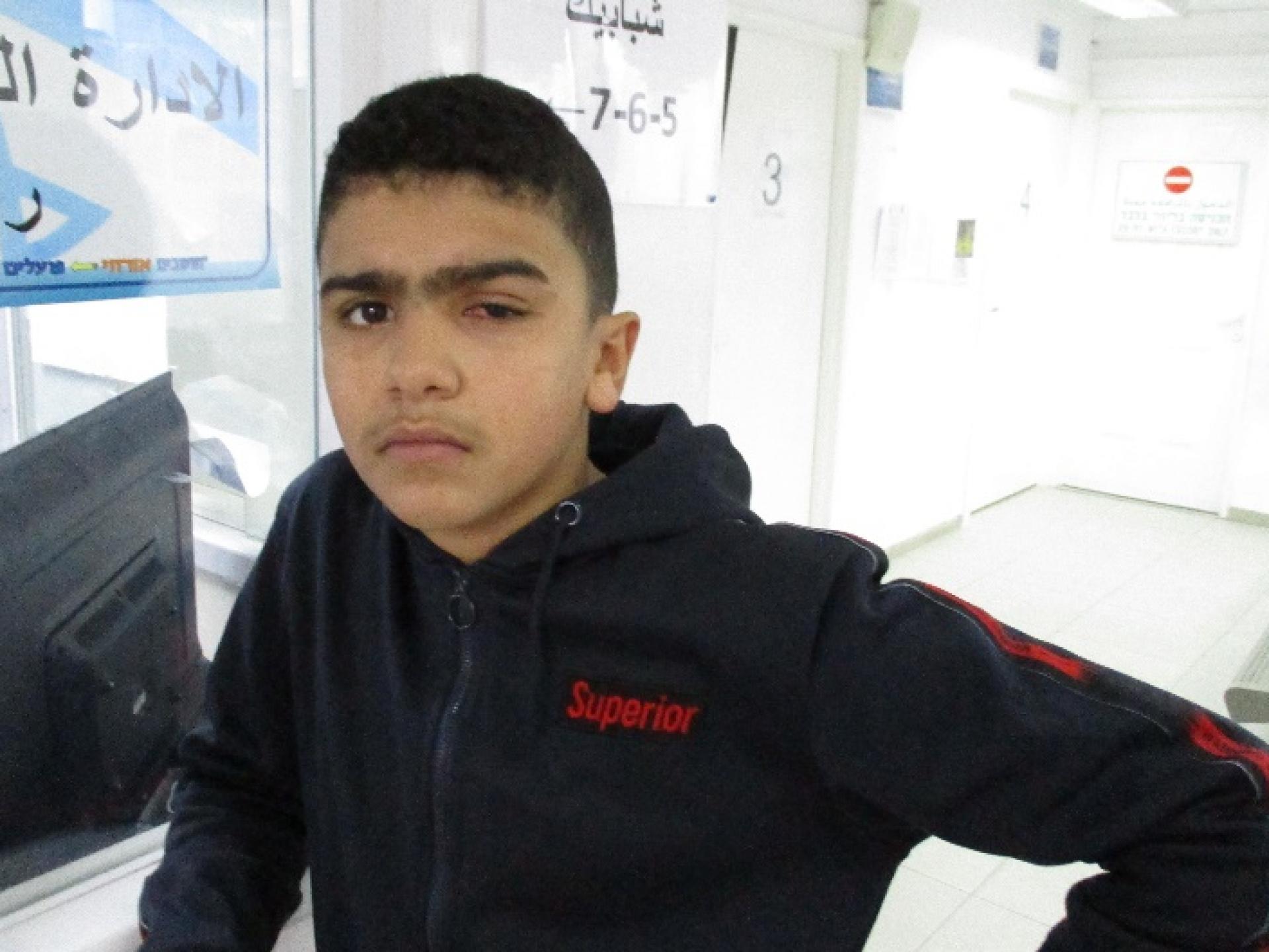 עבדאללה אחרי ניתוח בעין