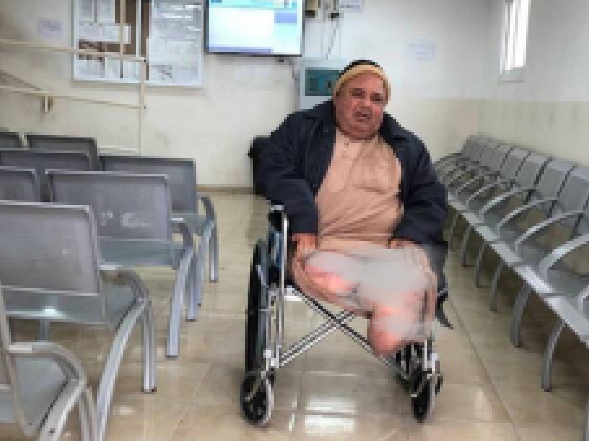 אדם קטוע רגלים בכסא גלגלים