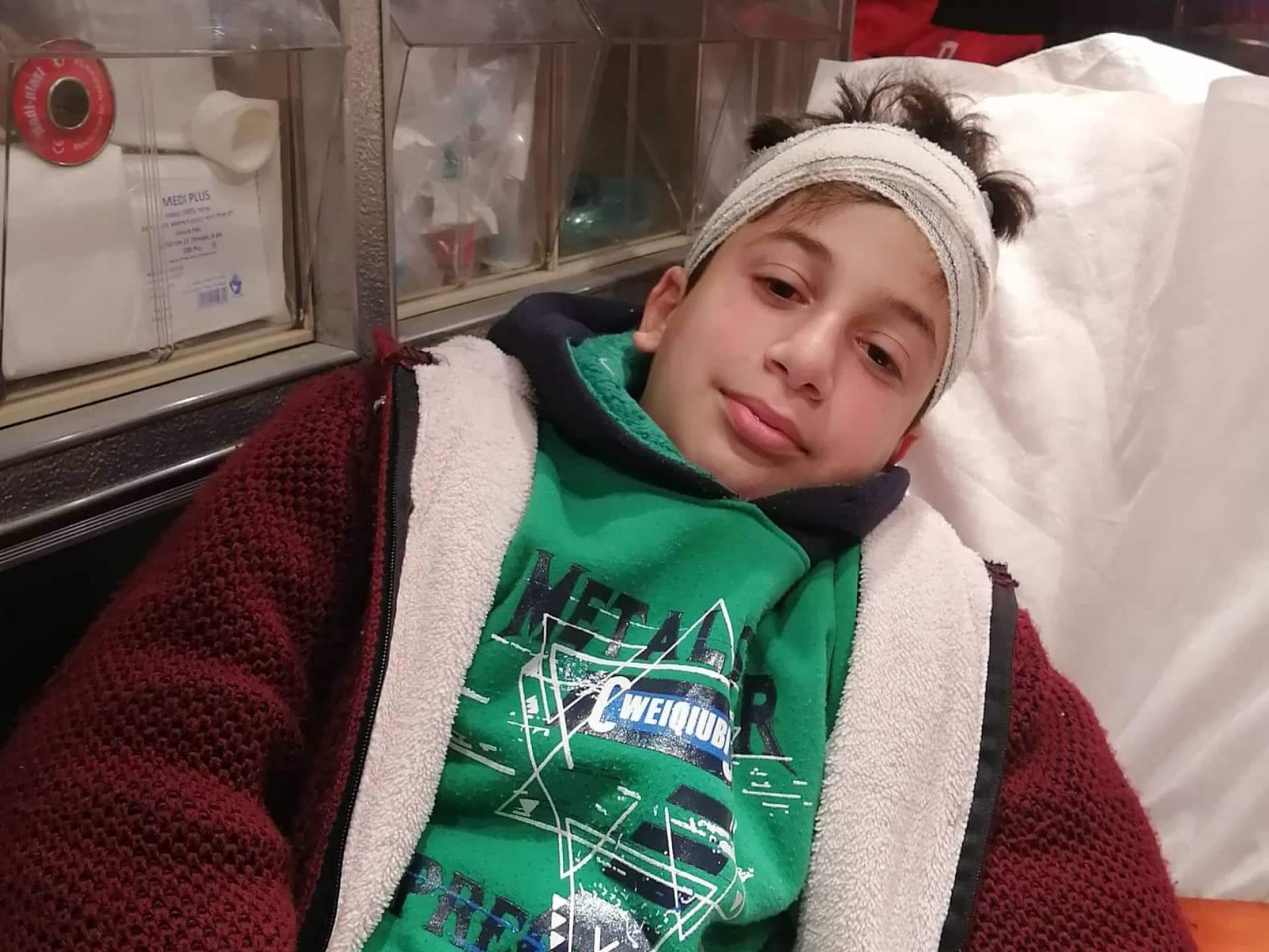 ילד שעמד בפתח נפגע, נפל ונפצע.