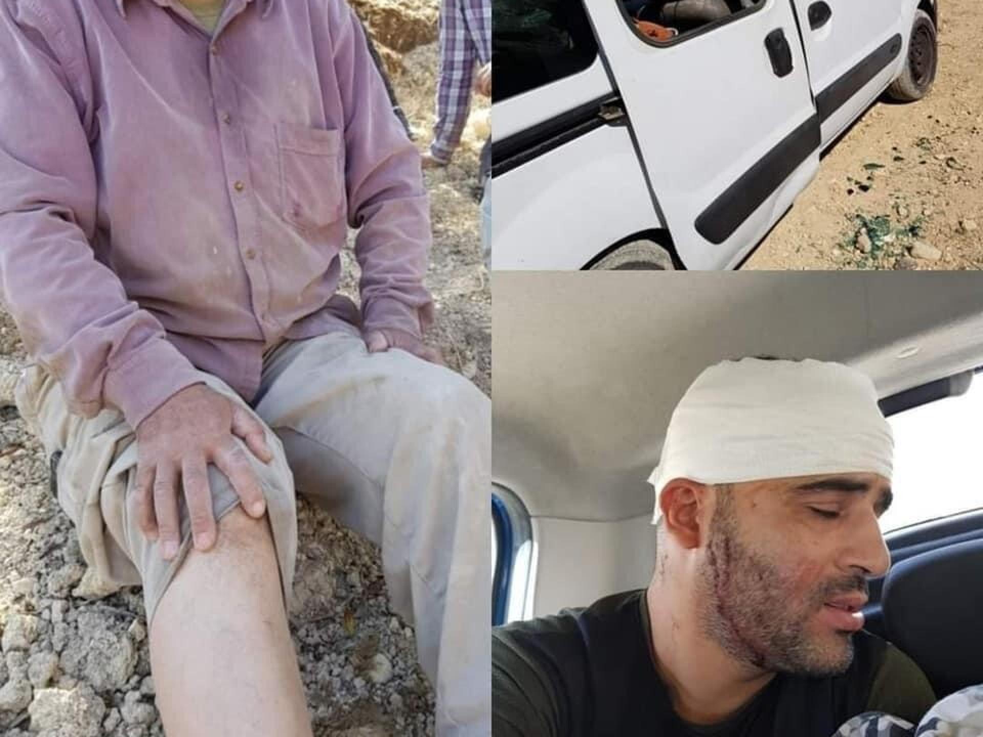 פלסטינים מוסקים שנפצעו מתקיפת מתנחלים מיצהר