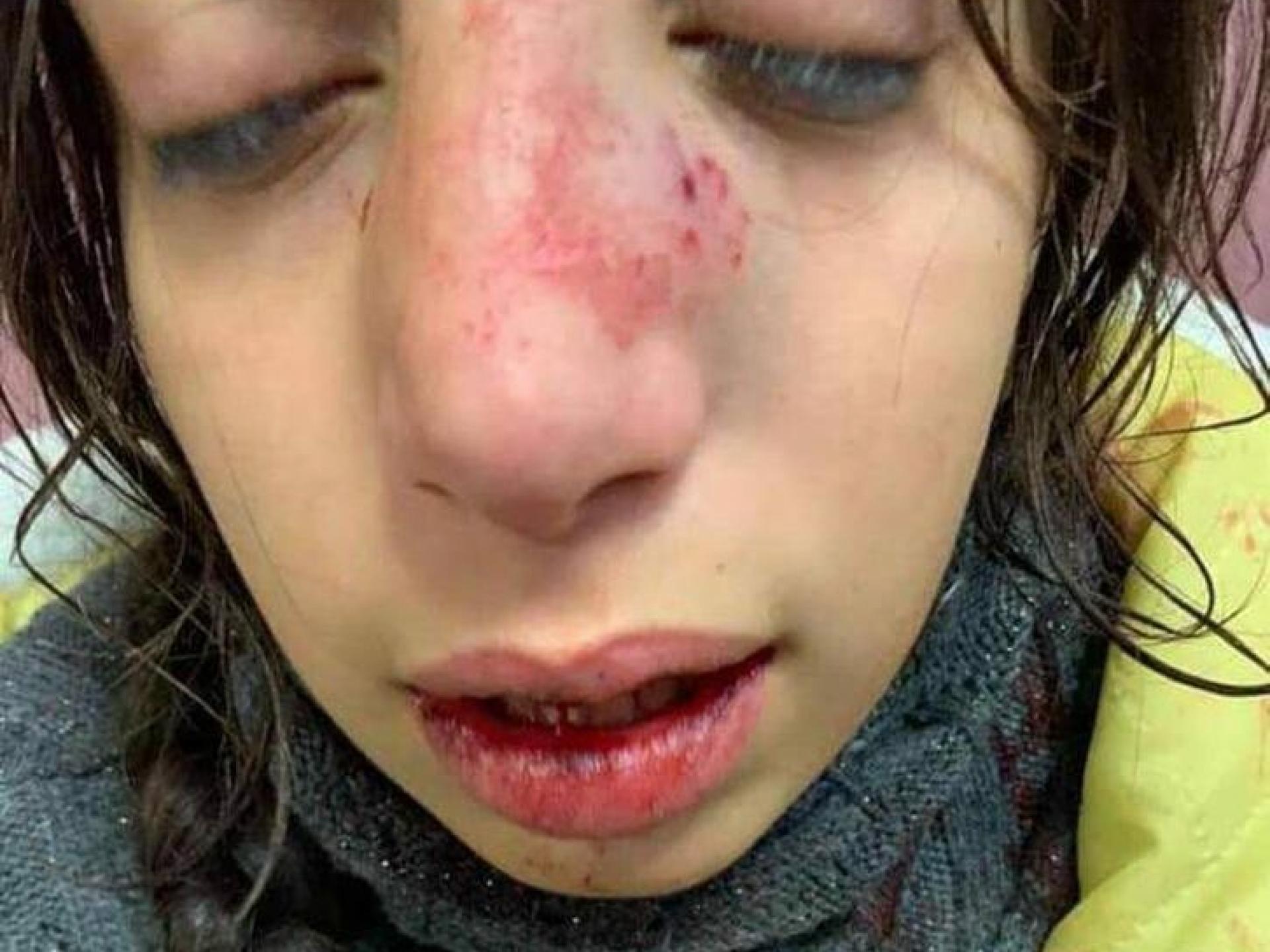 הילדה הפצועה